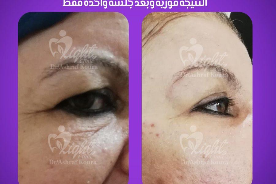نتائج تجميل وجه غير جراحي
