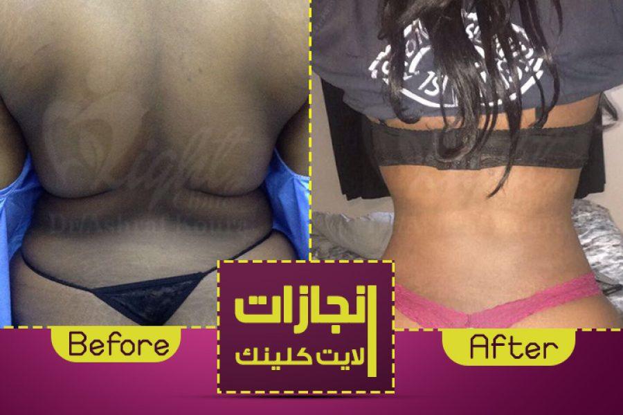 نتائج شفط الدهون