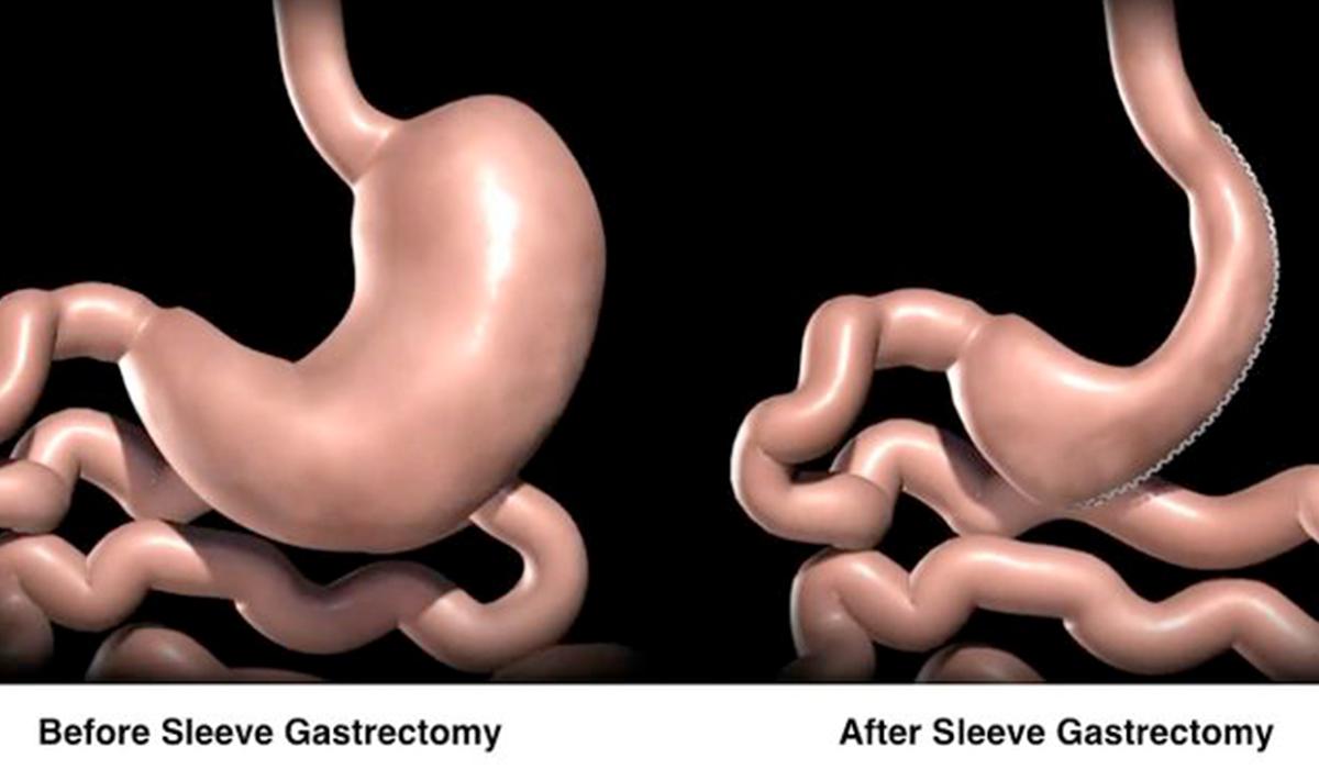 تكميم المعدة هي الجراحة الأولى لعلاج السمنة