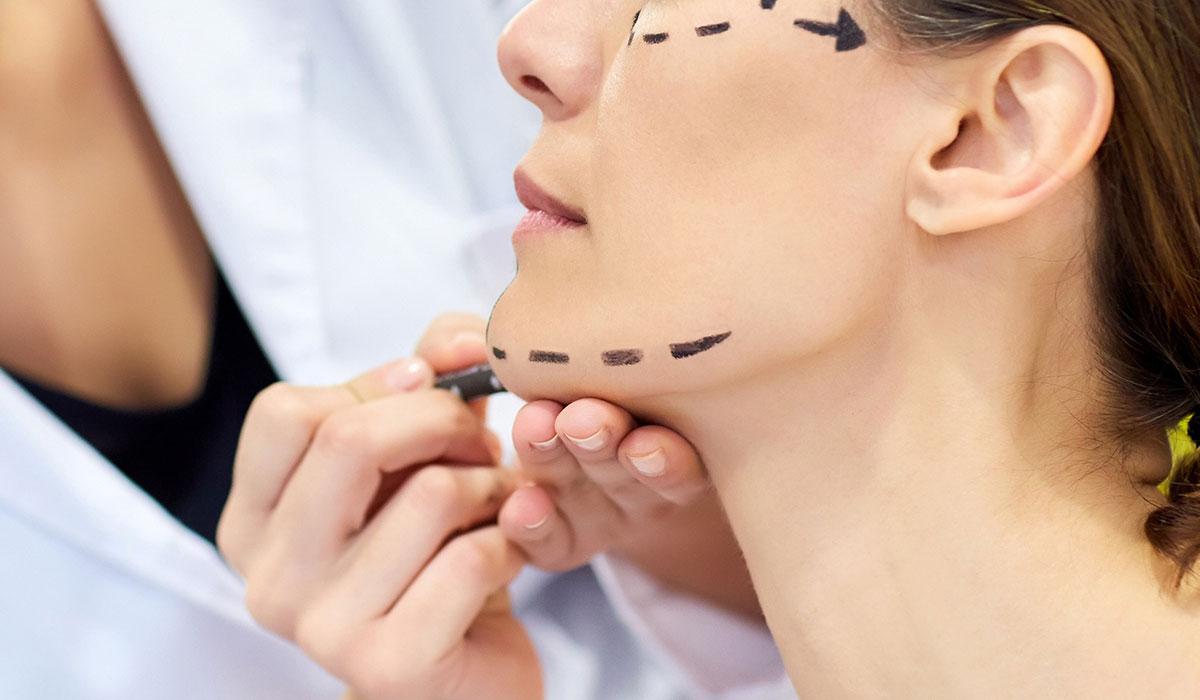 عملية شد الوجه بالخيوط الذهبية وكل ما يهمك عن عملية شد الوجه