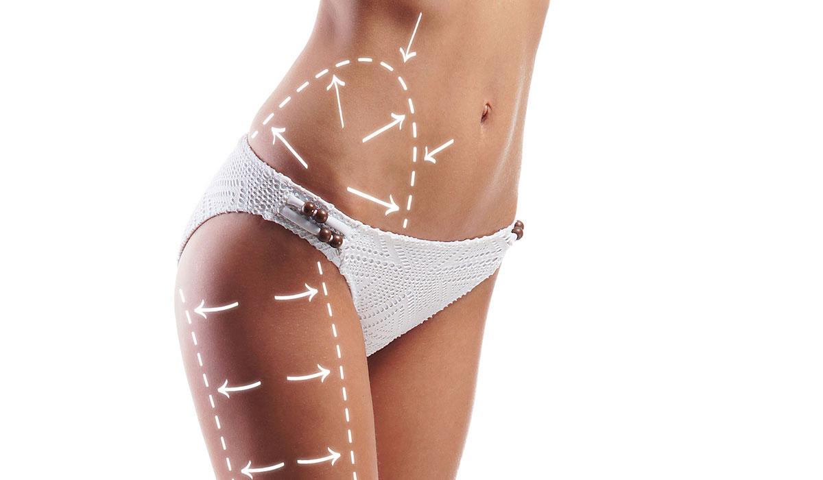 عملية شفط الدهون بالليزر