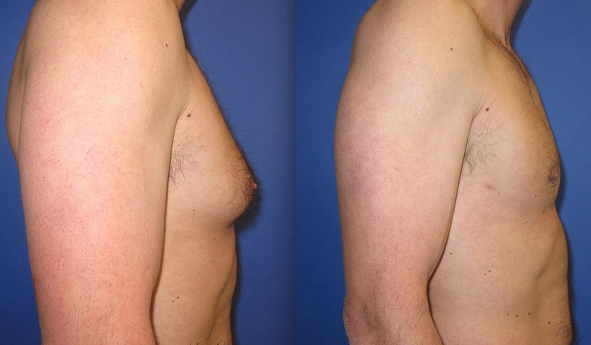 ازالة التثدي عند الرجال بالفيزر .. هل تحتاج إلى تدخل جراحي؟