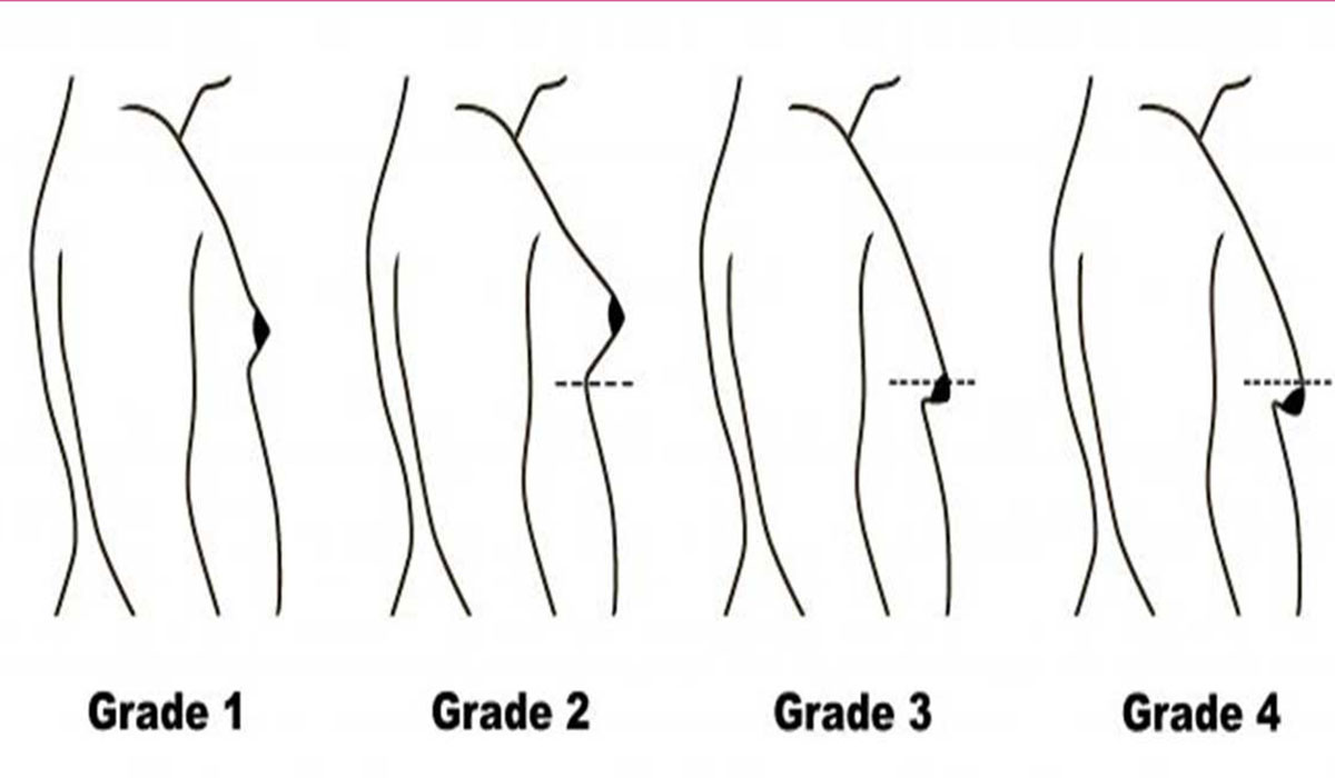 درجات التثدي