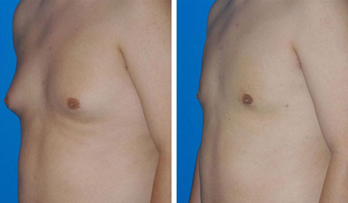 علاج التثدي لدى الرجال .. ما الخيار الأمثل الأدوية، أم الجراحة؟