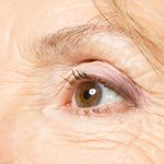 علاج تجاعيد العين