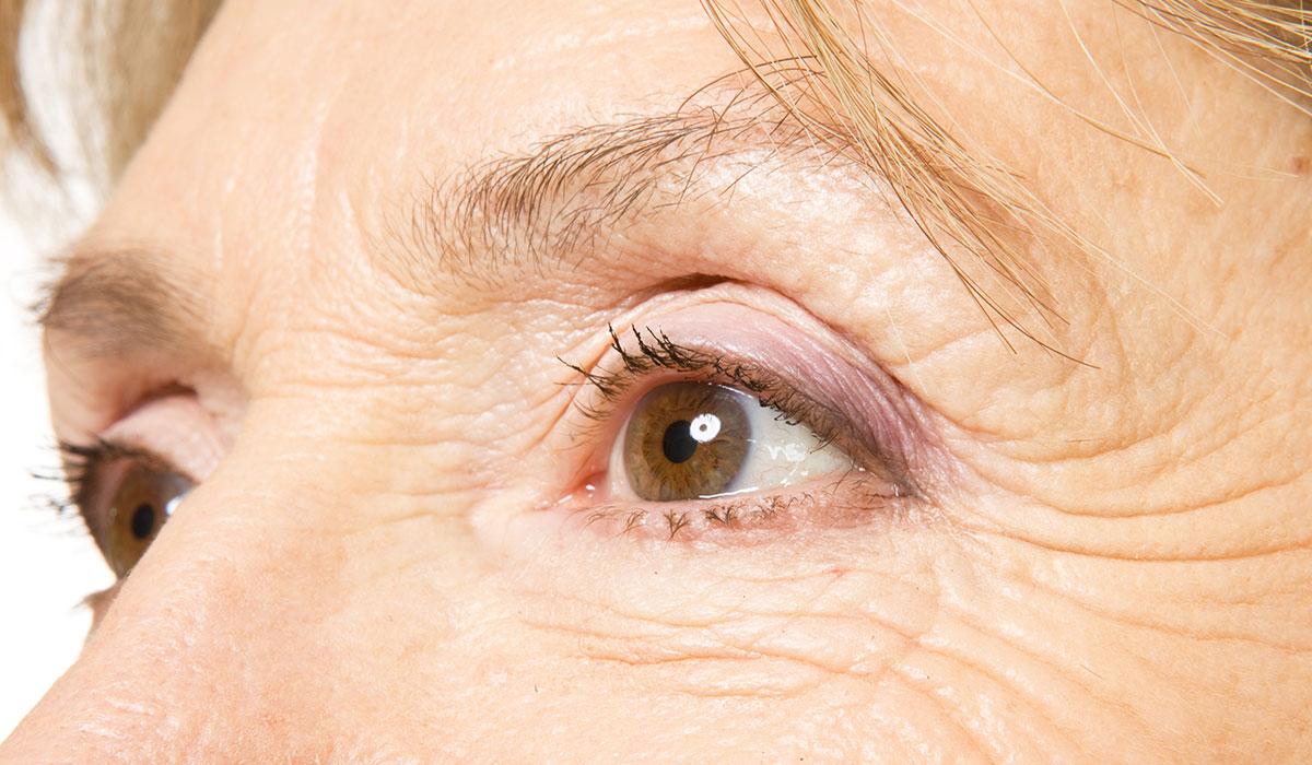 علاج تجاعيد العين.. أهم الوصفات الطبيعية لإزالة التجاعيد