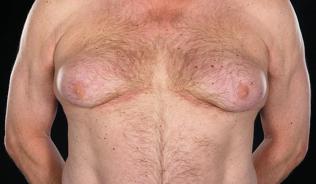 اعراض التثدي عند الرجال.. ودرجاته.. وأسبابه وطرق علاجه المختلفة