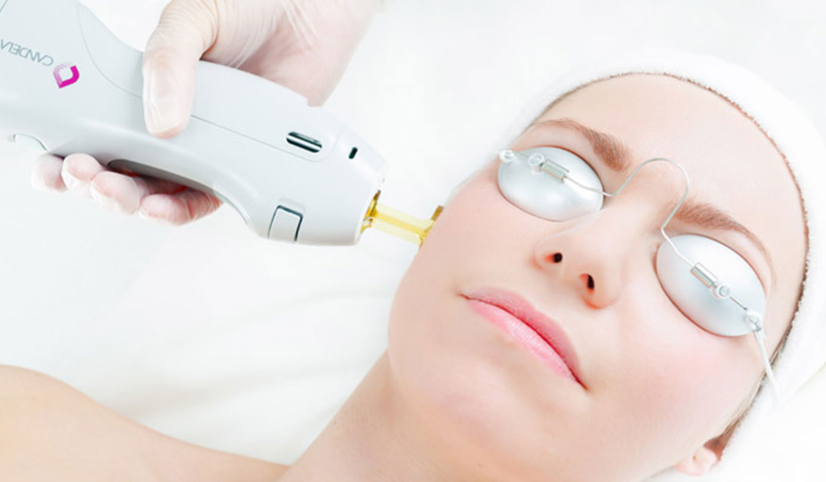 انواع اجهزة الليزر .. الاستخدامات والخصائص بما يتناسب مع لون الجلد والشعر