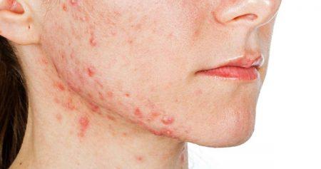 ظهور حبوب في الوجه اثناء الحمل.. وكيفية علاجها بطرق آمنة.. طبية ومنزلية
