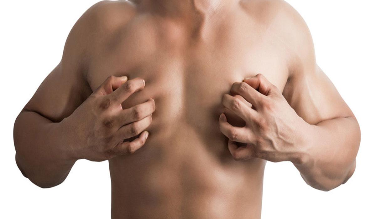 التثدي عند الرجال اسبابه وعلاجه بالطرق الجراحية والأدوية الطبية