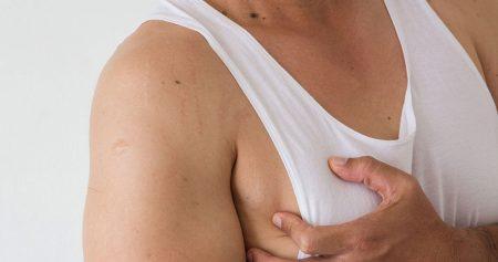 التثدي عند الرجال.. أسبابه وأعراضه ودرجاته وخيارات علاجه وأكثر