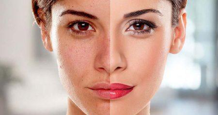 تبيض الوجه والحصول على بشرة مشرقة بإجراءات طبية ووصفات منزلية