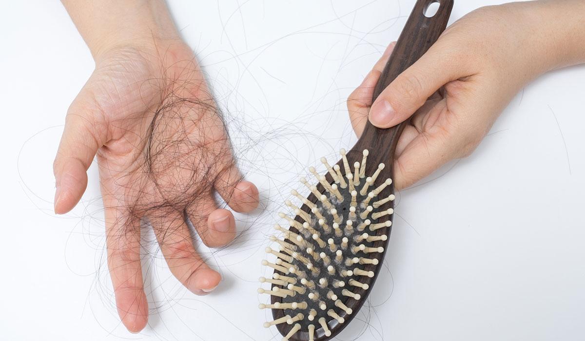 تساقط الشعر بعد التكميم.. أسبابه وطرق علاجه الطبيعية والطبية