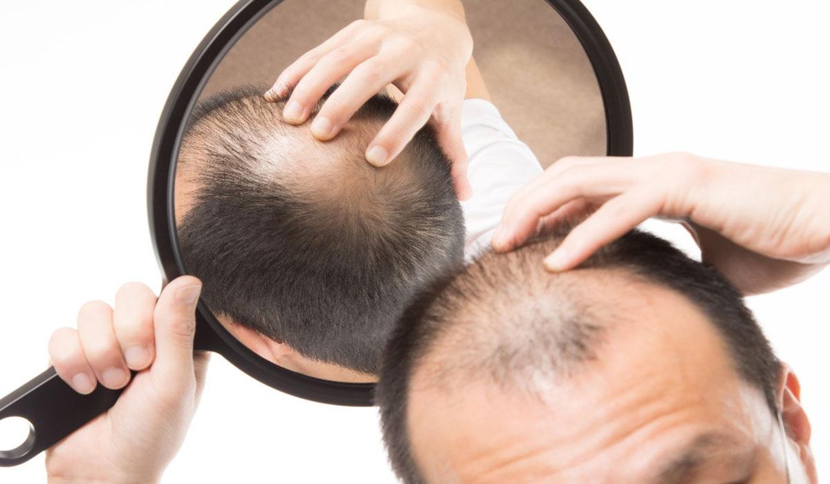 طرق علاج الصلع الوراثي.. لاستعادة كثافة الشعر بخيارات جراحية وغير جراحية