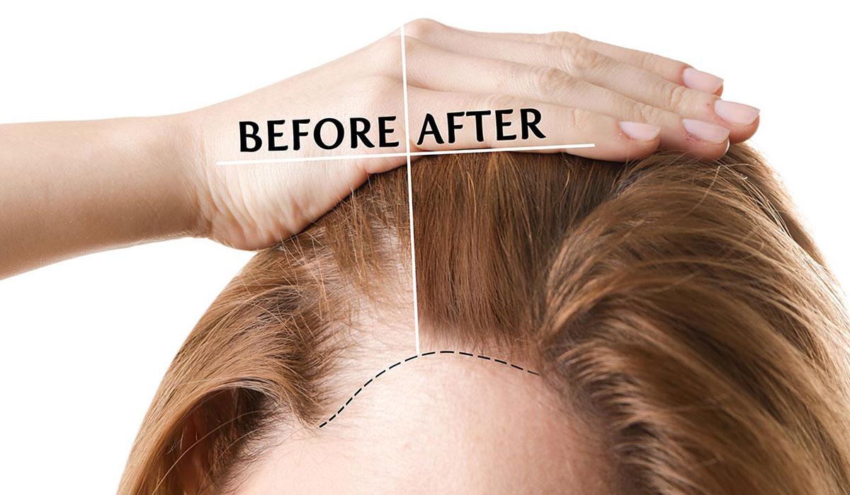 علاج فراغات الشعر.. شعر أكثر كثافة بطرق تجميلية.. ووصفات منزلية