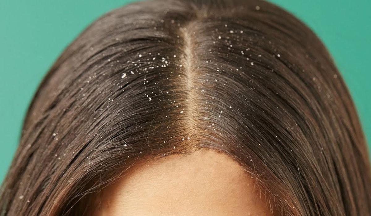 علاج قشرة الشعر.. احصل على شعر صحي.. وتخلص من الحرج