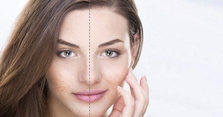 علاج ندبات الوجه.. خيارات عديدة والنتيجة بشرة أكثر صافية أكثر إشراقًا