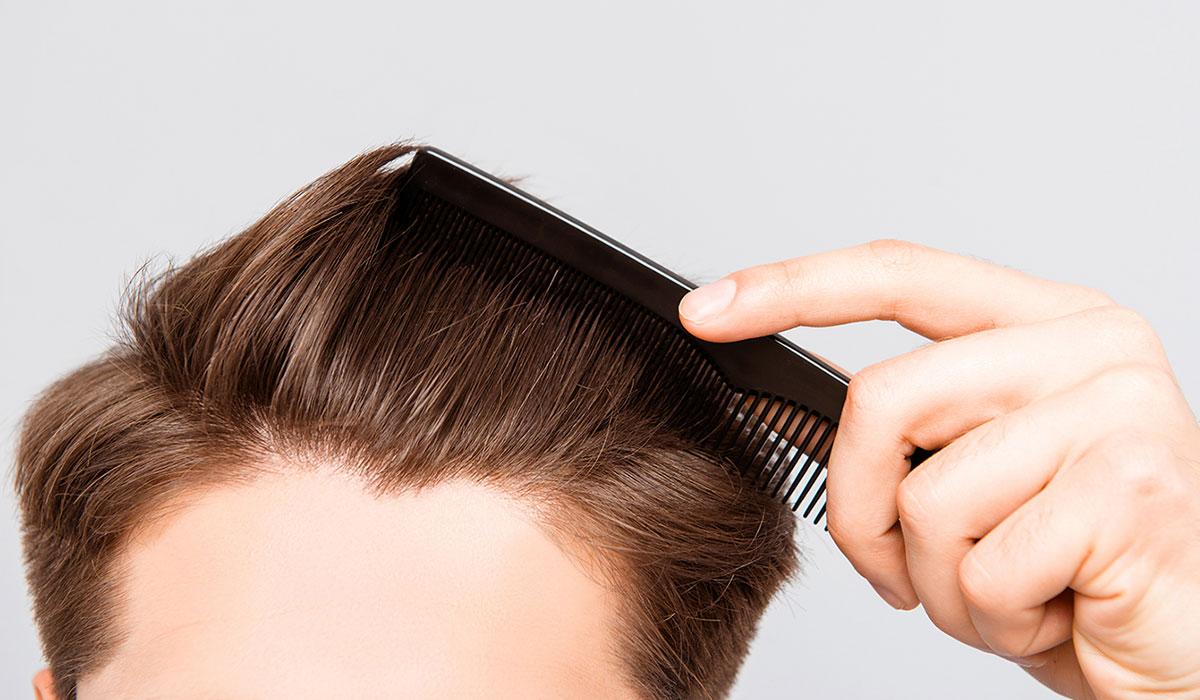 انبات الشعر.. 10 خطوات منزلية لشعر صحي وأكثر كثافة