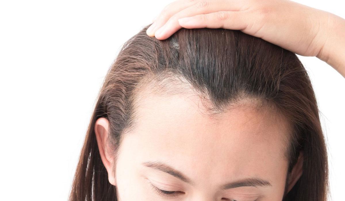 علاج لتساقط الشعر وتكثيفه.. تعرف على مختلف الطرق الطبيعية والطبية