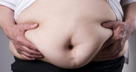 اعراض التسريب بعد عملية التكميم.. وما أسبابه وكيفة علاجه؟