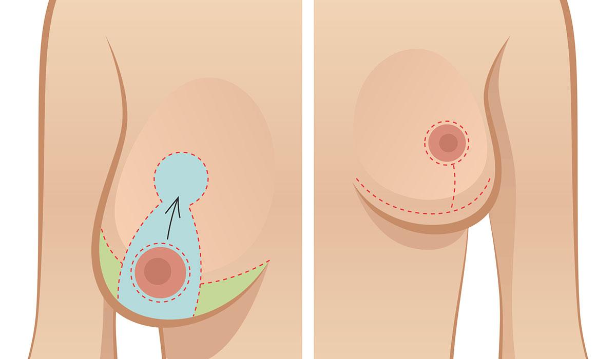 تصغير وشد الصدر.. بالطرق الطبيعية والتجميلية.. ومتى يجب اللجوء للجراحة؟