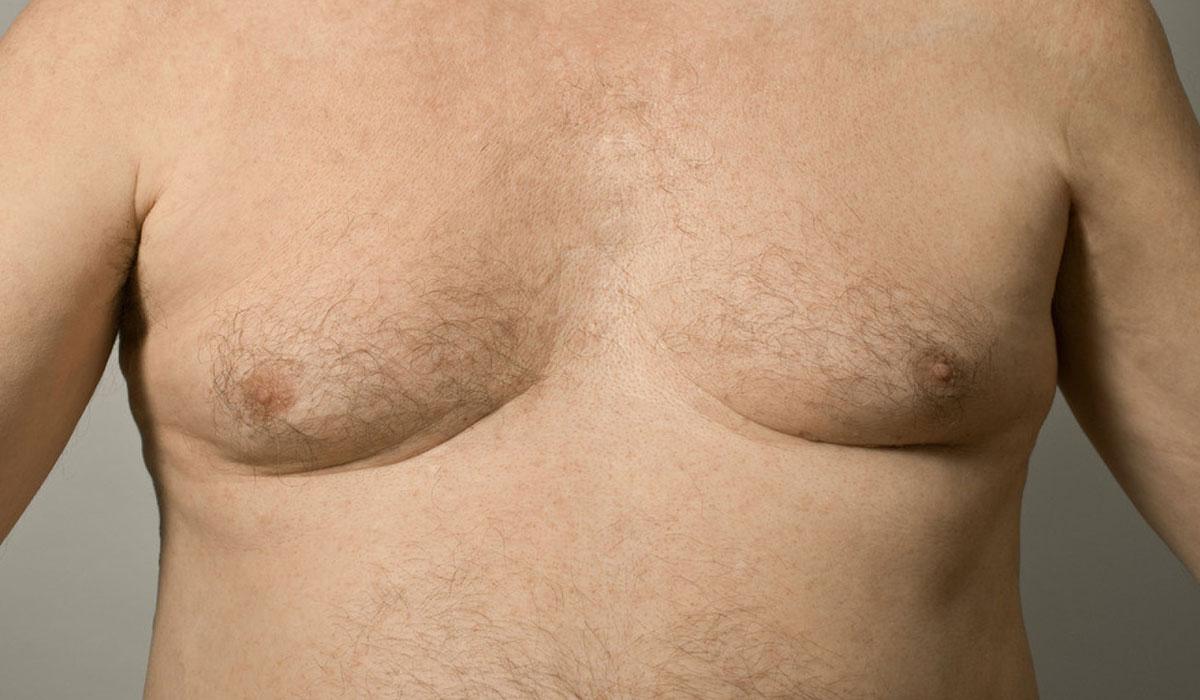 شفط الدهون من الصدر للرجال.. للحصول على صدر منحوت وعضلات أكثر بروزًا