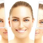 علاج الندبات في الوجه