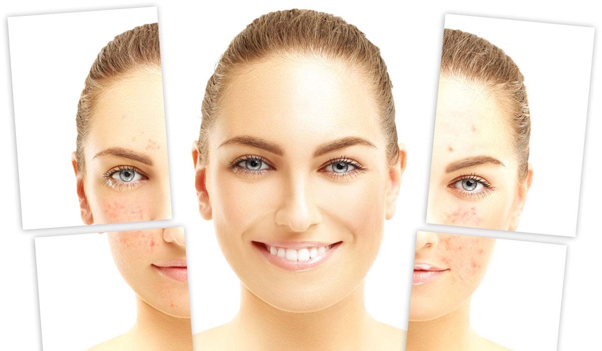 علاج الندبات في الوجه.. بطرق طبيعية وطبية.. لبشرة نقية وأكثر نضارة