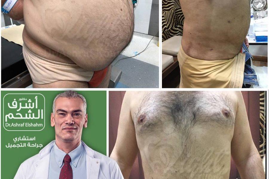 نتائج قبل وبعد شفط الدهون والتثدي