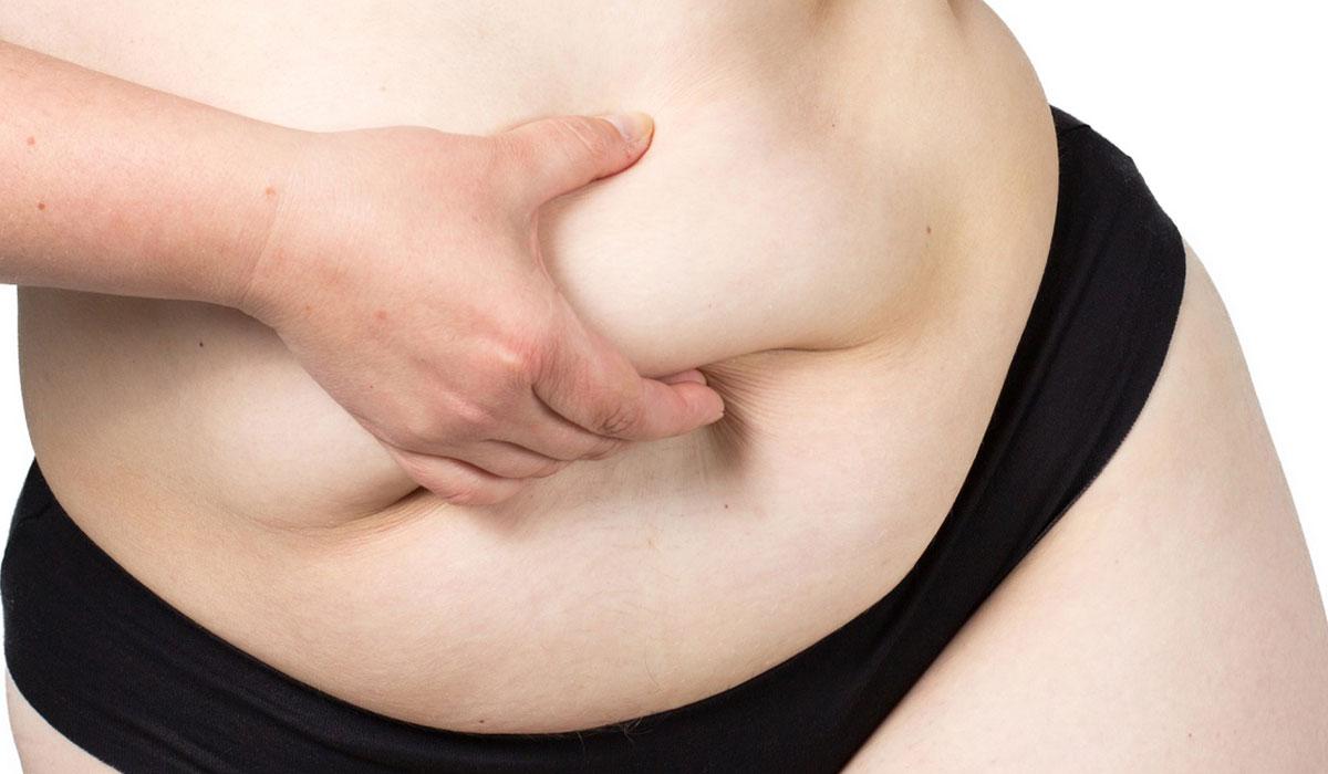 ازالة الدهون من الجسم.. والتخلص من السمنة الموضعية بطرق طبيعية وطبية