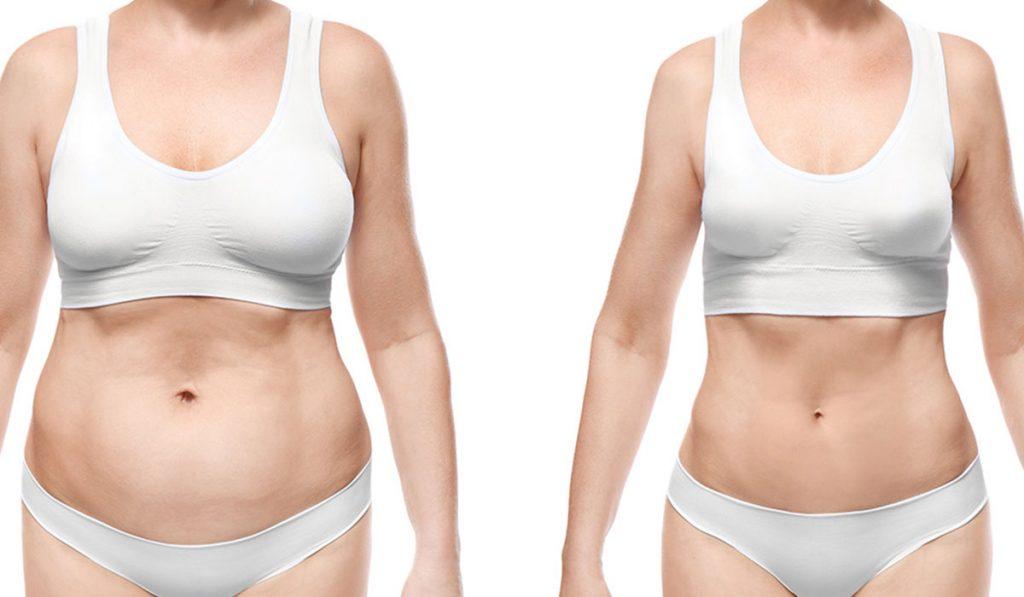 بالصور عملية شفط الدهون