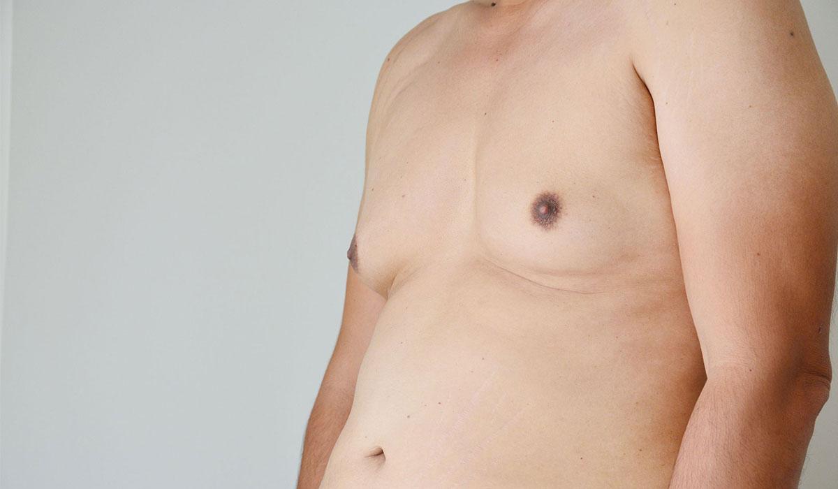 بروز الصدر عند الرجال.. الأسباب والتشخيص وطرق العلاج