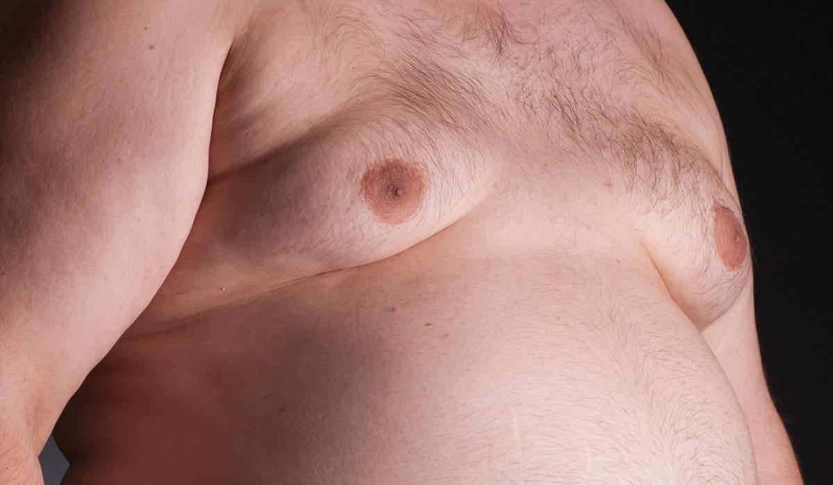 جراحة التثدي عند الرجال