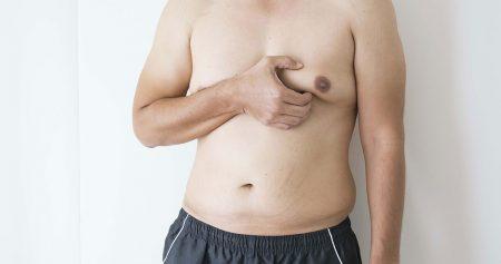 شفط دهون الثدي للرجال.. لمظهر عضلي منحوت في أقل من ساعتين