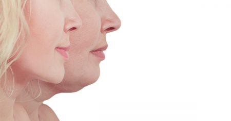 شفط دهون الوجه بتقنية Light Lipo.. الحل المثالي لنحت الوجه لمظهر أكثر شبابًا