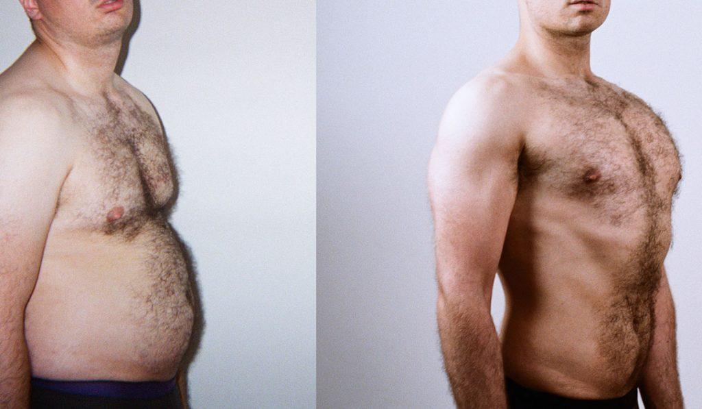 عملية شفط الدهون للصدر للرجال