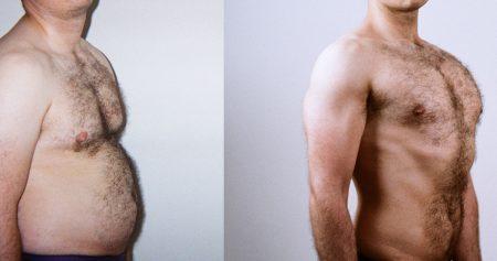 عملية شفط الدهون للصدر للرجال.. بالنتائج والخطوات والتقنيات