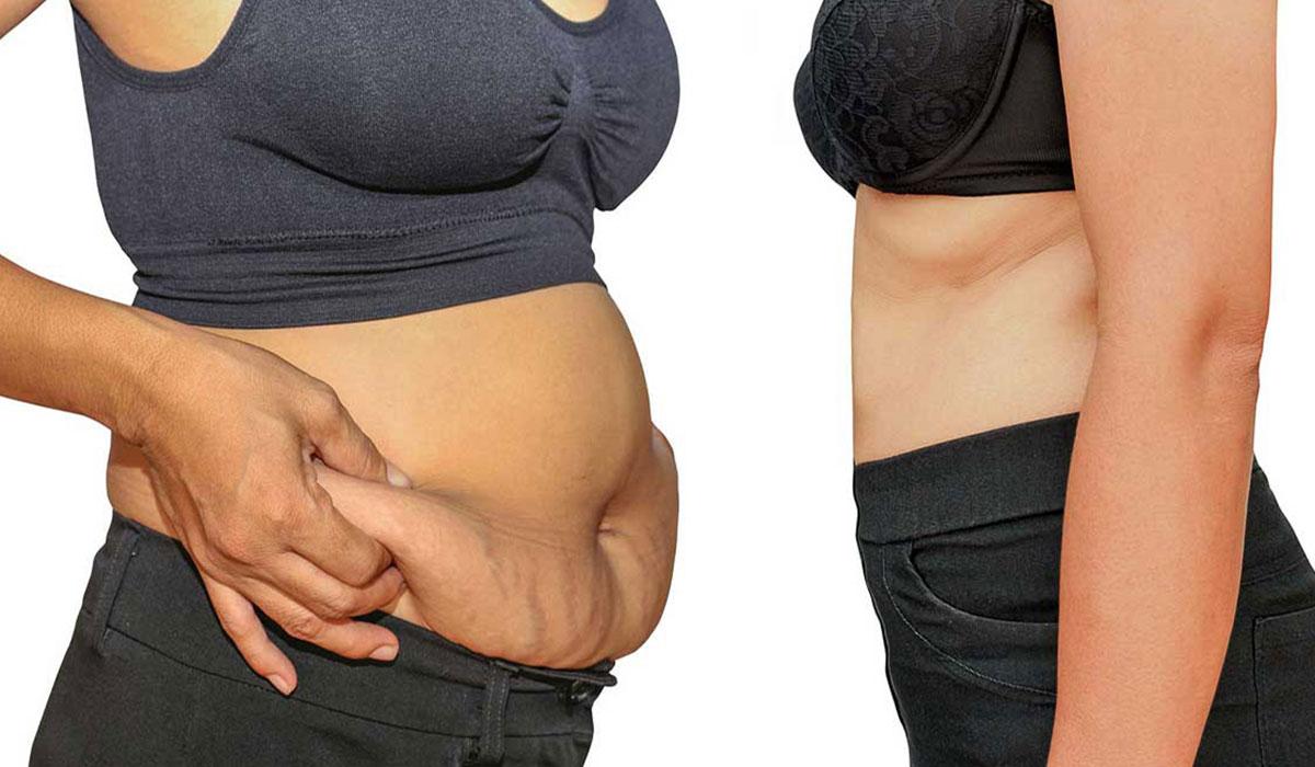 اذابة الدهون بالليزر.. لنحت الجسم وتنسيق القوام.. ونتائج دائمة