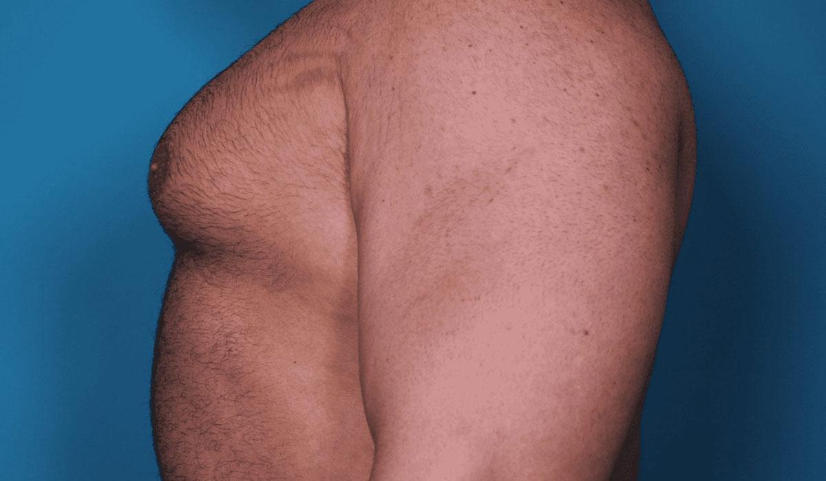 اضرار عملية التثدي عند الرجال.. وكيفية تفاديها.. وأهم التعليمات