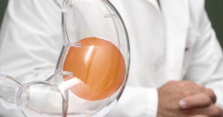 انواع بالون المعدة.. تعرف على المميزات والفرق والنتائج وأكثر