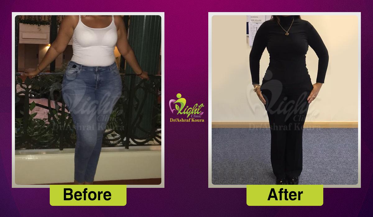 نتائج عملية شفط الدهون